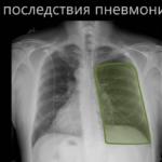 легкие на снимке после пневмонии