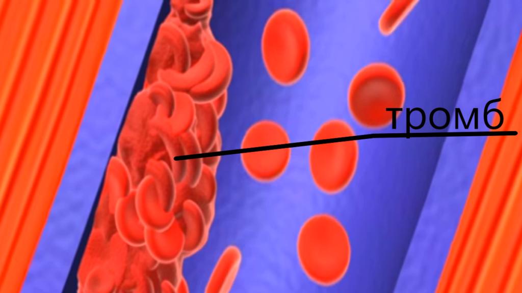 тромбы при коронавирусе